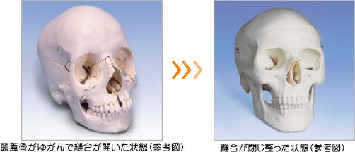 このバランスの崩れやわずかなズレを独自の『小顔調整メソッド』(頭蓋骨調整法やクラニアル調整等を使います)によって「手技」で整えていきます。